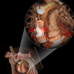 iphone ipad radiology