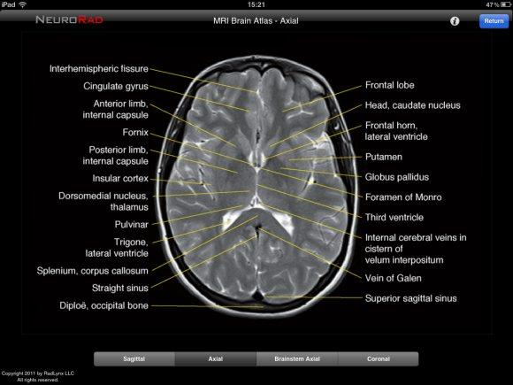 Ct brain anatomy