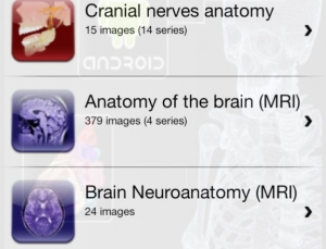 E-Anatomy Android app from IMAIOS is a must for radiologists