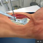 Wrist Repair Image 2