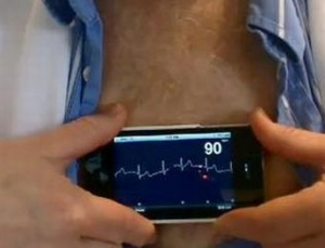 AliveCor receives FDA 510k approval in just 80 days