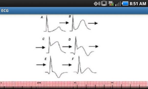 myo infarction graph 1