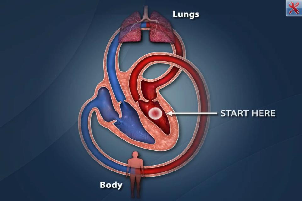 Cardiac Catheterization app uses visual animations for ...