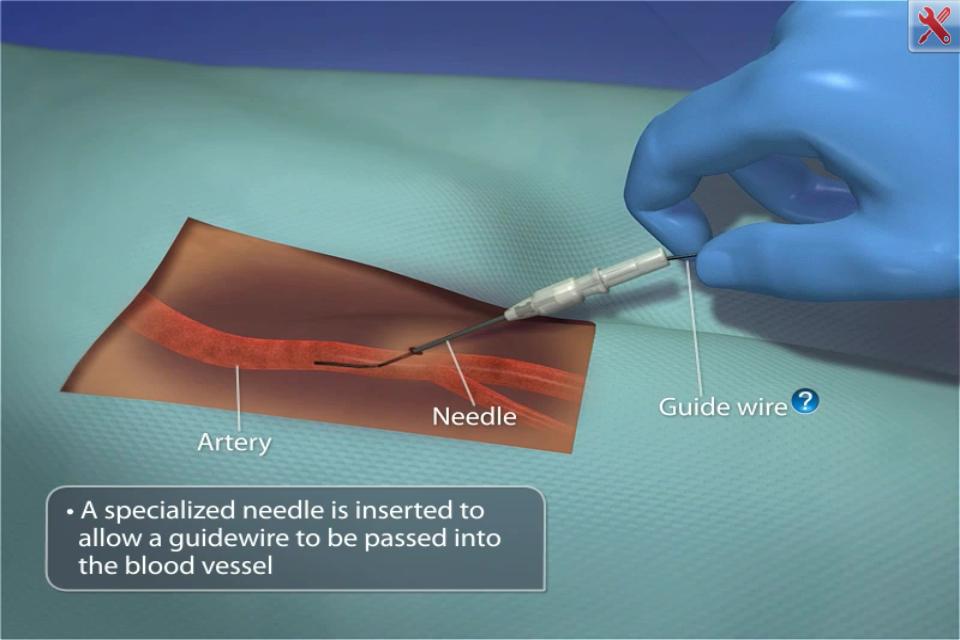 Procedimientos de cateterismo