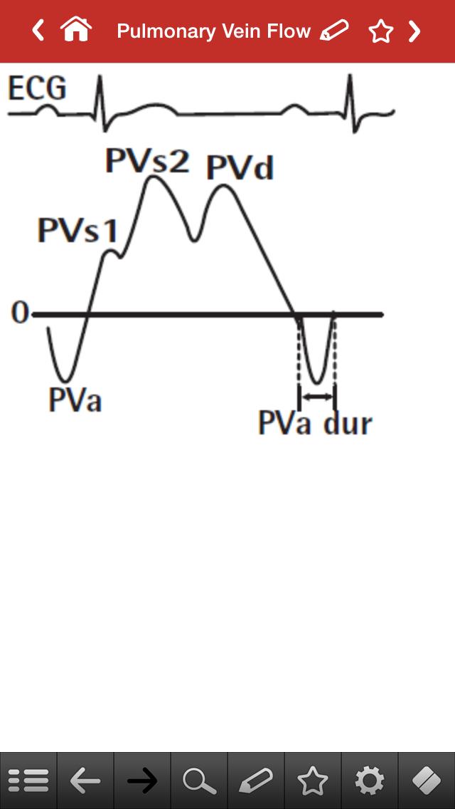 How to Interpret Echocardiograms pictures