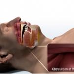 sleep apnea drawing