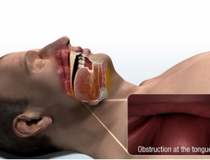 Potential to improve CPAP compliance, FDA approves first implantable sleep apnea device