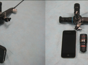 iPhone modified bronchoscope doesn't intubate better than Glidescope or DL