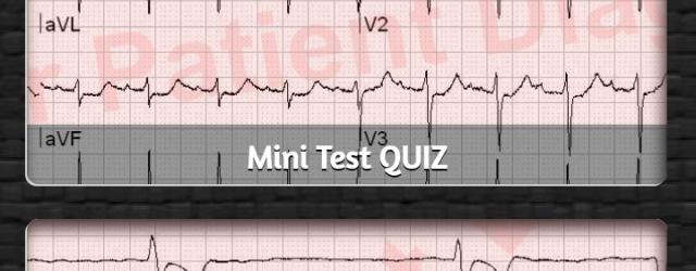 ECG Quiz for Android helps you practice 12 lead interpretation