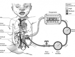 Artificial lung could provide life saving treatment for premature neonates