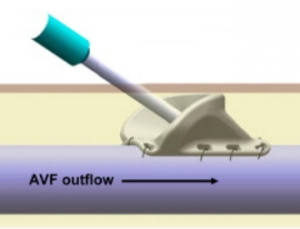 VWING device enables use of noncannulatable AV fistulae