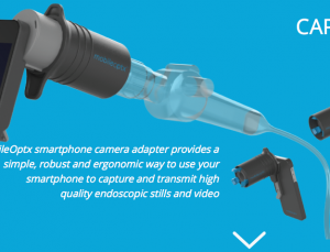 Mobileoptx makes iPhone into portable endoscope
