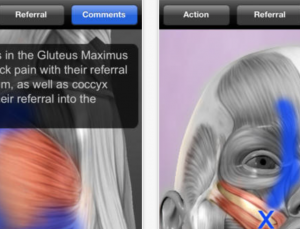 Muscle Trigger Points app tries to help diagnose etiology of muscle pain