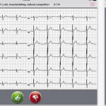 screening EKG