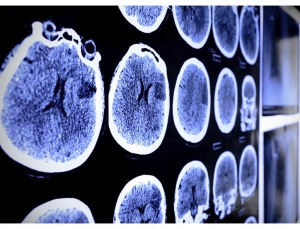 Mobile stroke team could deliver tPA faster according to new study