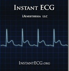 Is the Instant ECG App Better Than the ECG Guide for the iPhone? We crown the best ECG app [App Review]