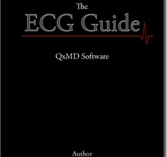 ECG Guide App can help you learn ECGs on your iPhone [App Review]