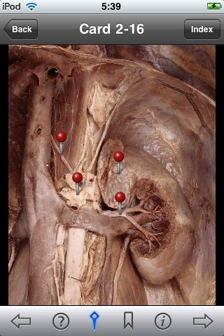 iPhone Anatomy App Review: Clemente\'s, Rohen\'s, and Moore\'s Anatomy ...