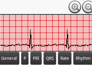 Can Android teach EKG interpretation?  An overview of three popular Android EKG apps [Android medical app review]