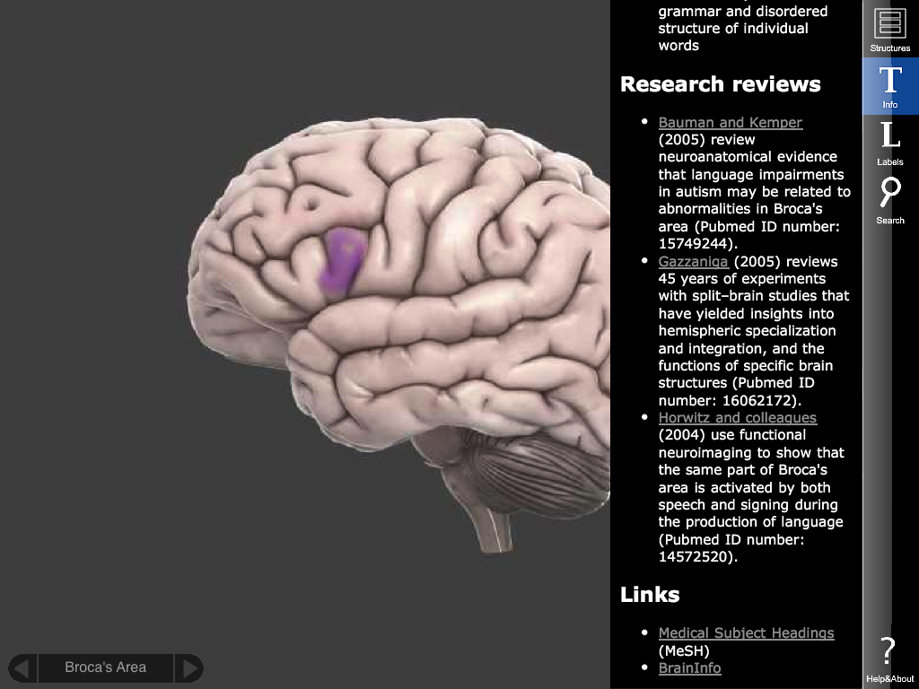 3D brain app is on the iPad - it's still free and fun to use