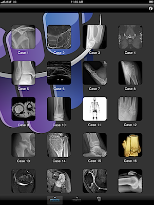 Radiopaedia iPad app is great learning tool for radiologists and other imaging-based specialists