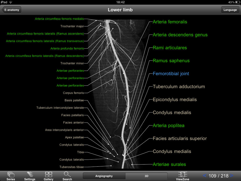iPad anatomy app that could replace a textbook? IMAIOS Mobile Atlas ...