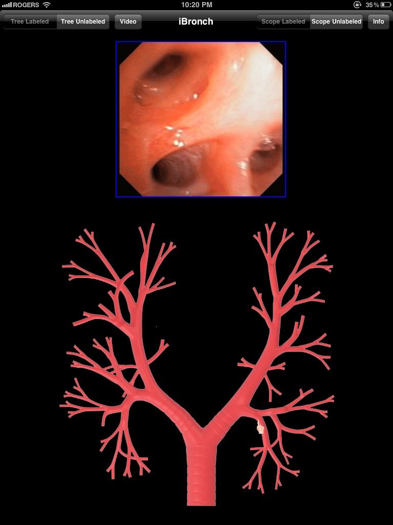 iBronch app provides a virtual glimpse into bronchoscopy on iPad ...