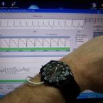 Pulse Sensor01