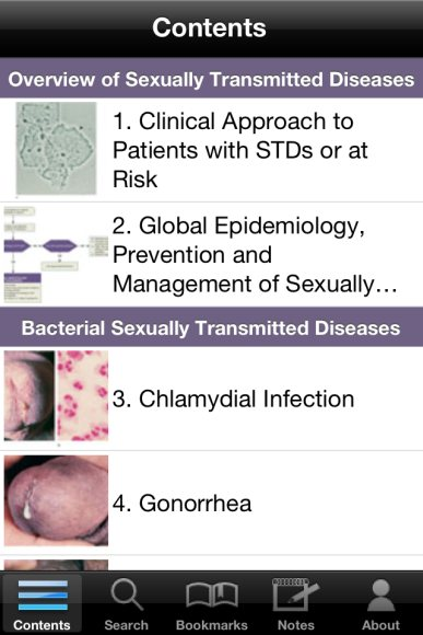 Medicine sexually transmitted diseases