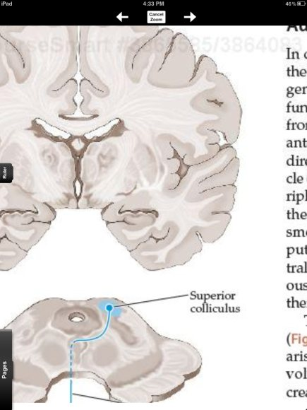 Coursemart Neuroanatomy has some good features, but lacks some ...