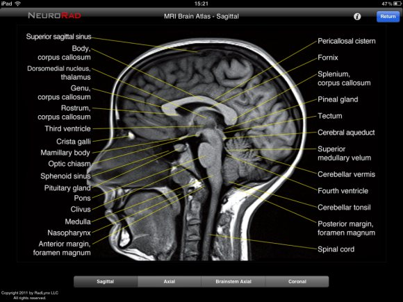 Brain Anatomy Mri Best Brain 2018
