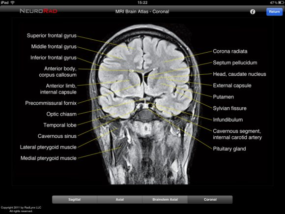 NeuroRad for iPad is a great app for medical professionals to learn ...