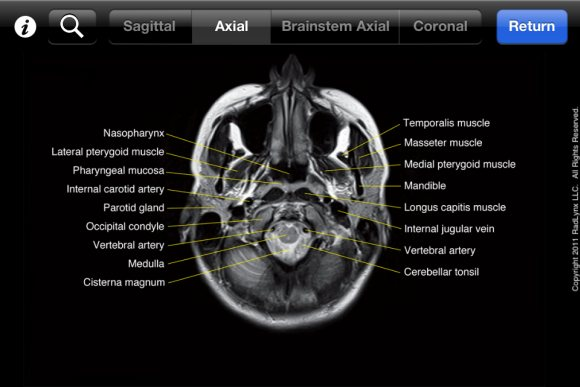 Mobile Mri Brain Atlas Medical App Review Neurorad Mini