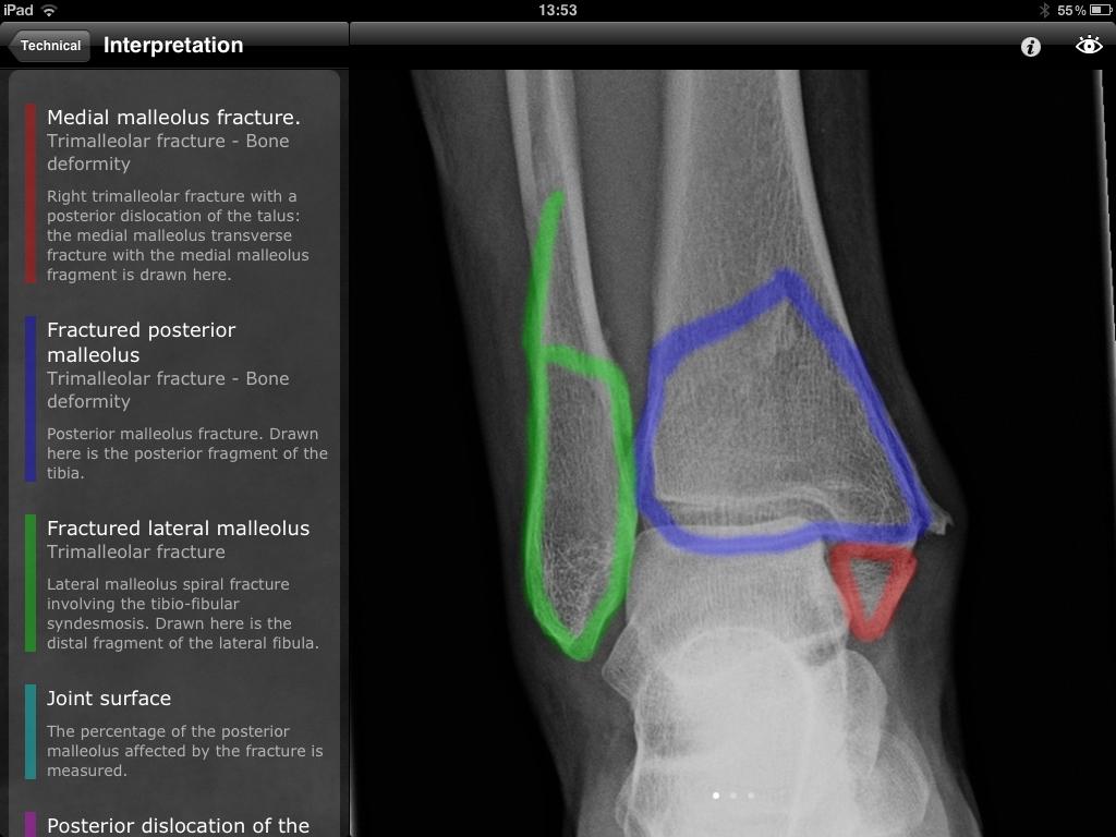 Real World Orthopaedics app is essential musculoskeletal radiology ...