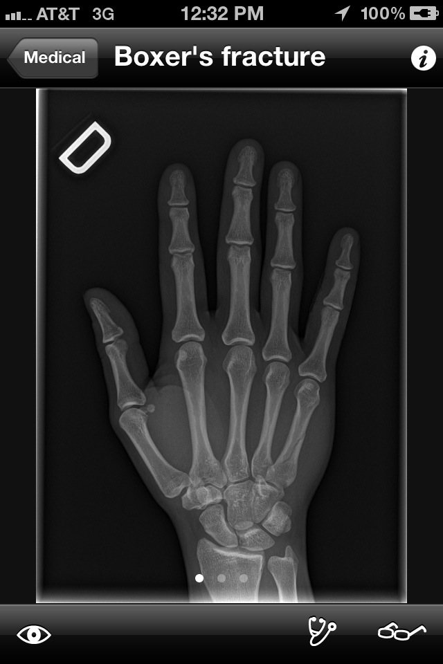 Realworld Orthopaedics App Musculoskeletal Radiology App