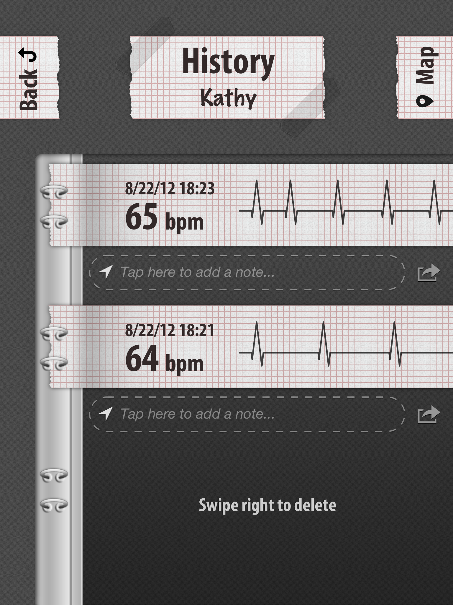 Heart rate apps such as pulse phone and heart rate - Notes Can Be Added And Locations Recorded Through The Phones Gps Although The Pattern Is Of A Qrs Complex The Machine Is Only Picking Up The Pulse