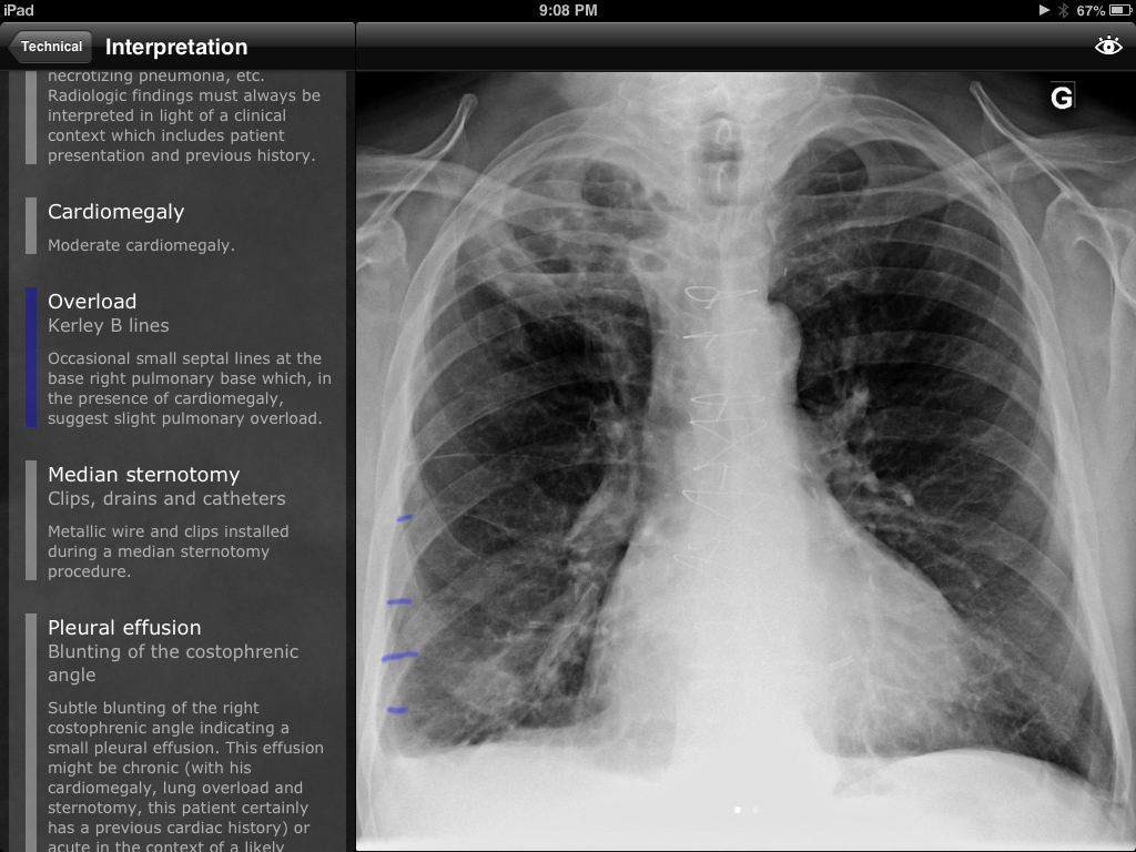 RealWorld radiology app is an effective way to learn Radiology