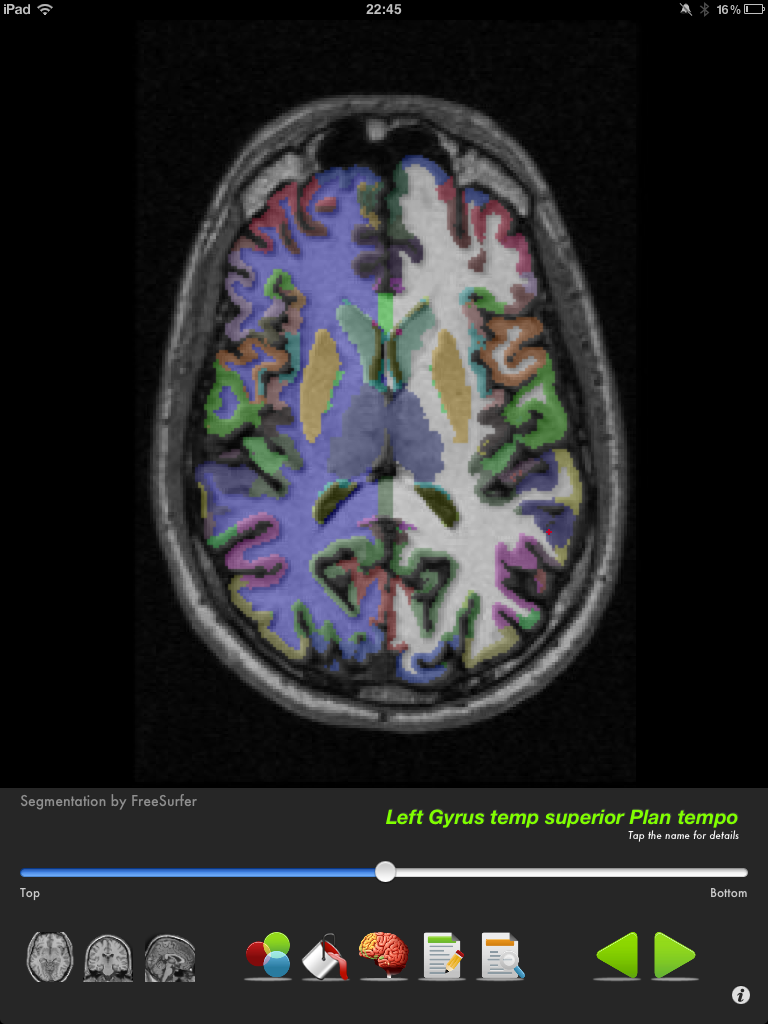 Brainview is a detailed neuroanatomy app using MRI images