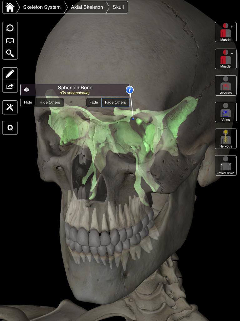 sphenoid bone 3d model – citybeauty, Sphenoid