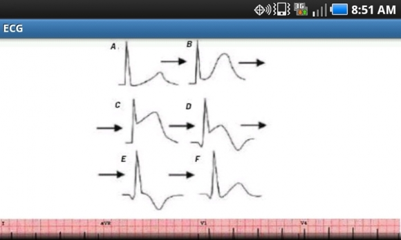 myo infarction graph 1