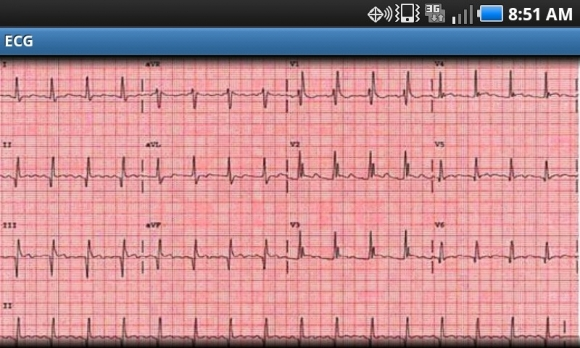 myo infarction graph 2