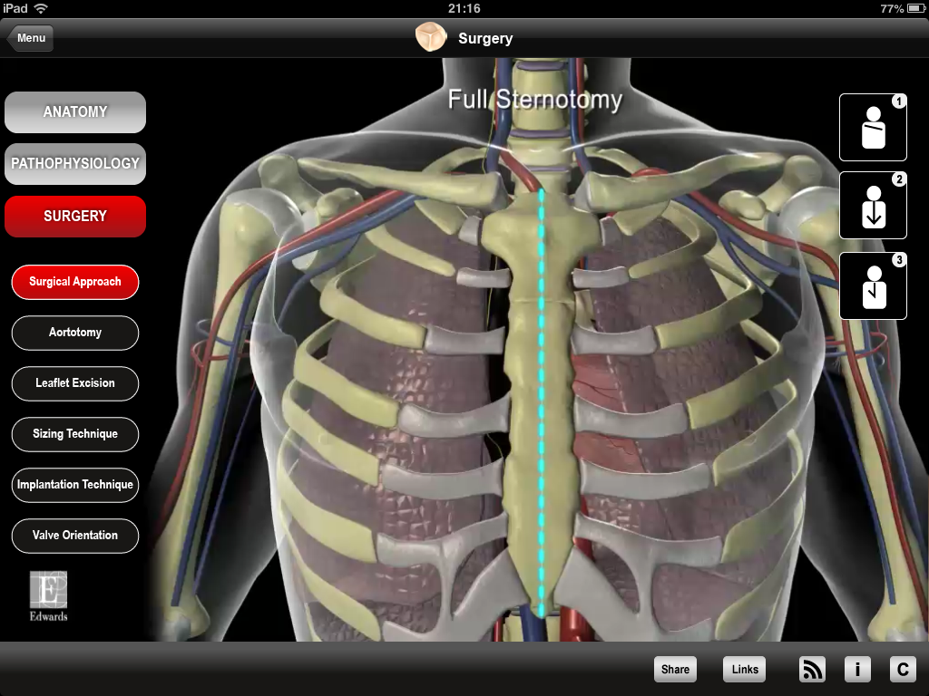 Edwards Heart Master App Combines Video And Anatomical Models For