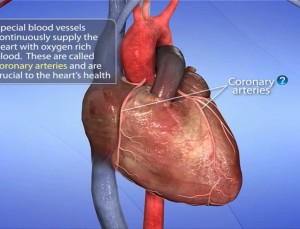 Cardiac Catheterization app uses visual animations for patient education about heart procedures
