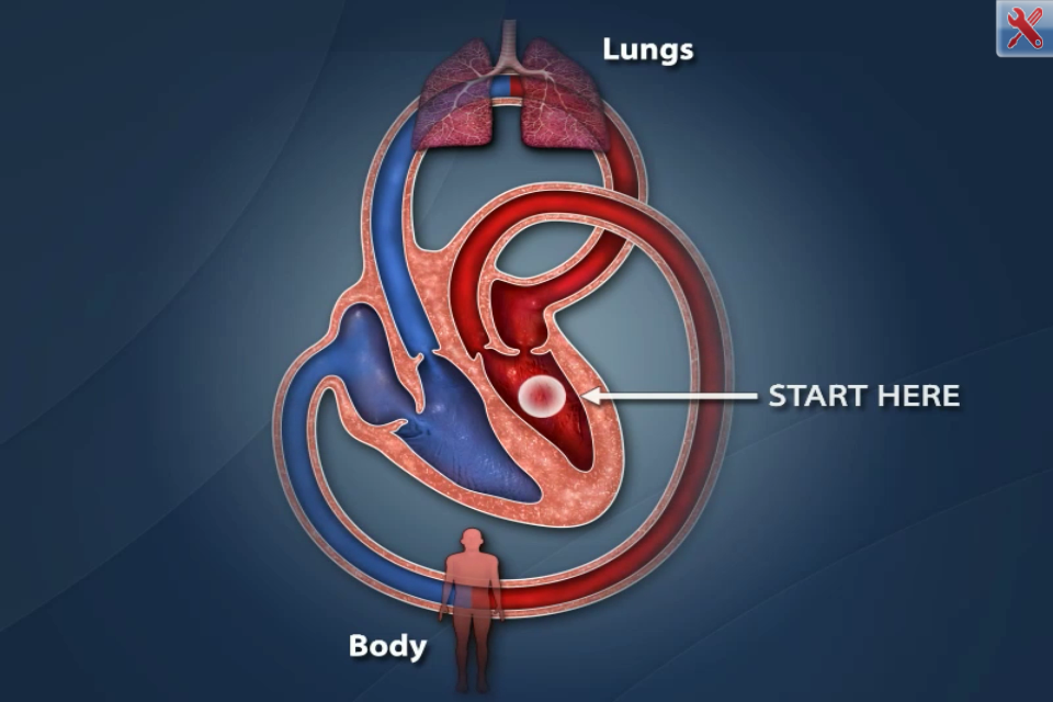 Cardiac Catheterization app uses visual animations for patient ...