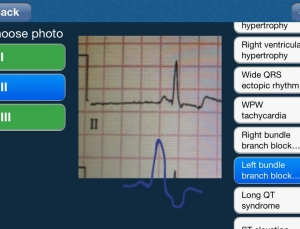 ECG Analysis App allows users to upload photos of an ECG for analysis