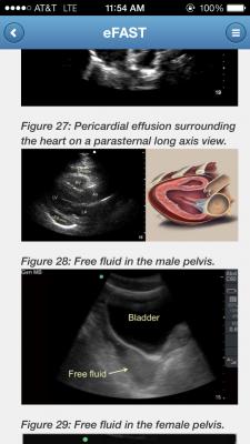 ultrasound shopping 5