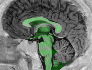 NeuroSlice app for Android aims to teach neuroanatomy with a large library of images