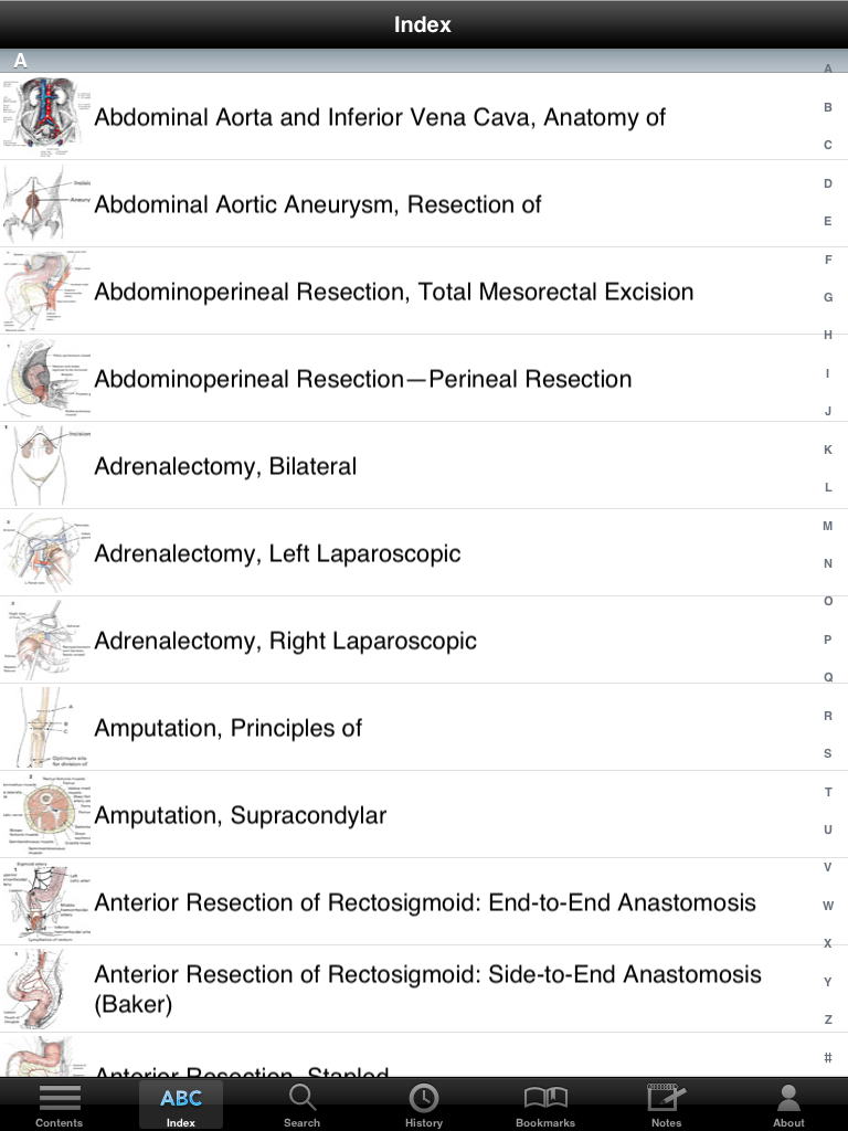 Zollinger S Atlas Of Surgical Operations Iphone Ipad Medical App