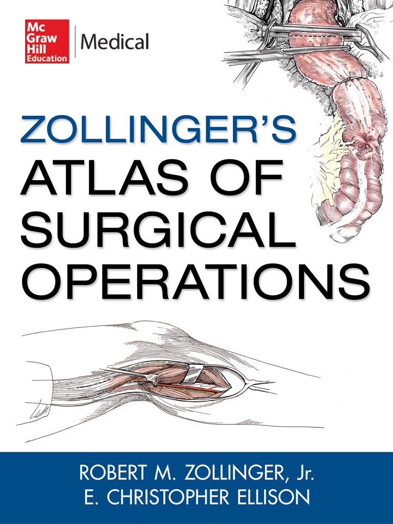 Zollingers Atlas Of Surgical Operations Iphone Ipad Medical App