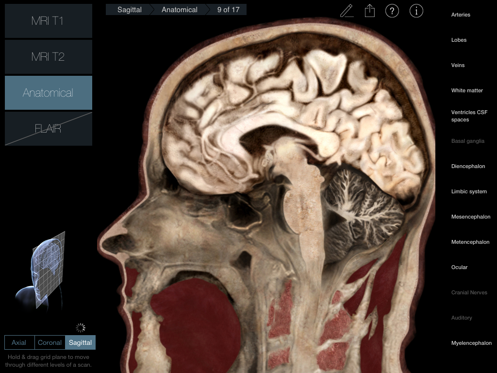 Radiology - Head iPad medical app review